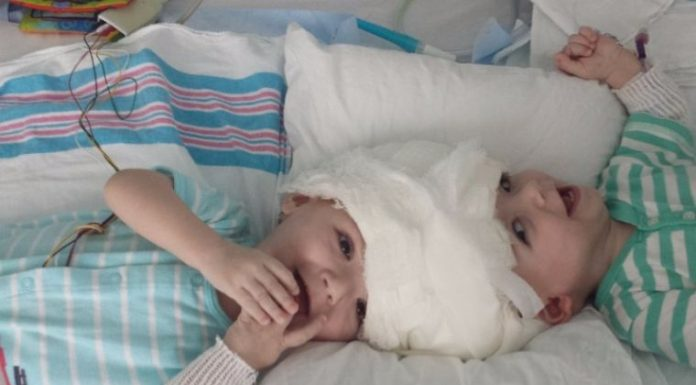 Separated Twins Begin Recovery: Parents meet conjoined twins for the first time after surgery