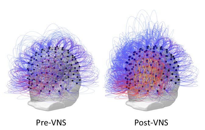 After 15 Years in a Vegetative State, Researchers Partly Restore Consciousness in Patient