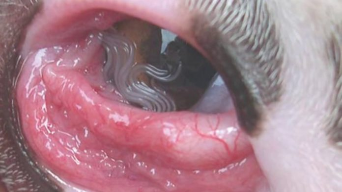US Woman Finds 14 Worms Living in Her Eye