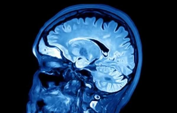 Herpes virus may play role in Alzheimer's, says new research