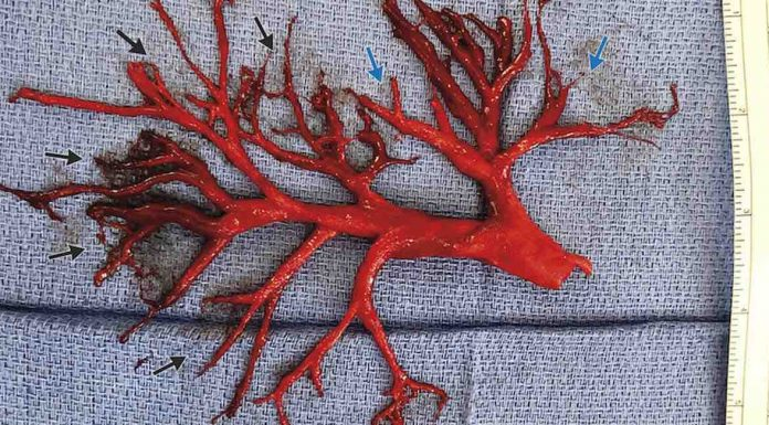 Man coughs up massive blood clot shaped like bronchial tree (Video)