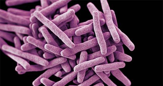 Dangerous, Drug-resistant Candida Auris Fungus Found In New Jersey