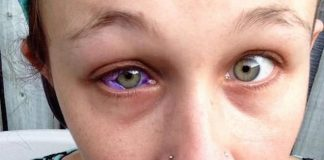 Canadian woman gets eye tattooed and it goes horribly wrong