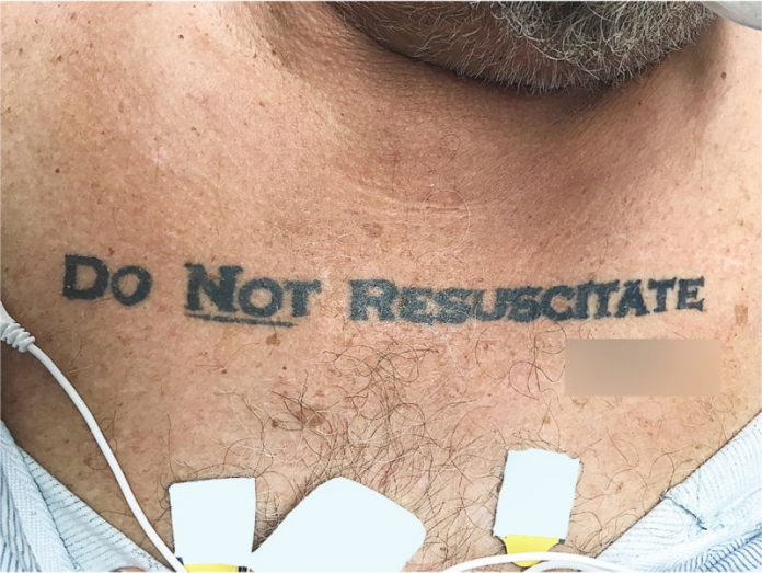 Doctors Baffled By Unconscious Man With 'Do Not Resuscitate' Tattoo (Photo)