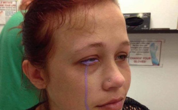Eyeball Tattoo Leaves Woman In Pain And Partially Blind