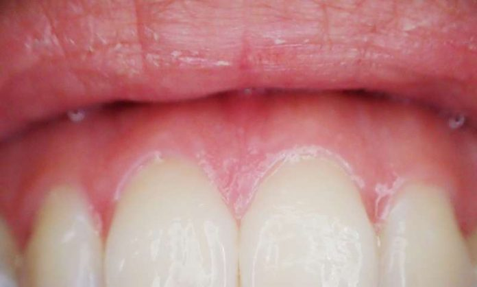 Research ties gum disease bacteria to esophageal cancer