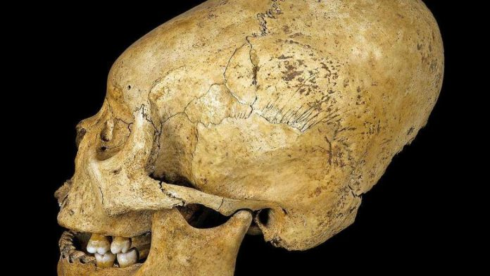 Elongated Skulls Increased Kudos in Ancient Peru, says new research
