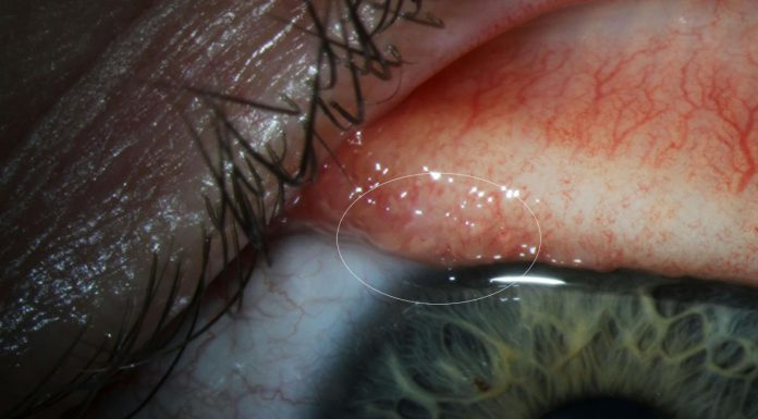 Report: Parasitic worms found in woman's eye in California