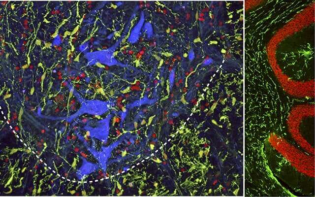 New injection technique may boost spinal cord injury repair efforts (Study)