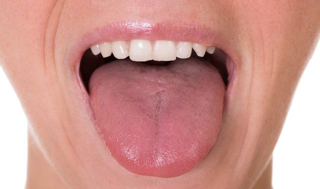 Research Finds Tongue Fat Can Lead to Sleep Apnea