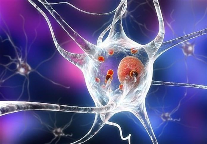 Stem cell study finds malfunctioning brain cells in patients who were diagnosed before age 50, scientists test potential new treatment