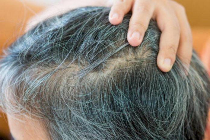 Stress and hair graying: Solving a biological puzzle (Study)
