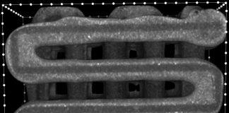Report: Bioengineers 3D-print implants to seed multiple layers of tissue