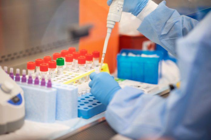 Coronavirus testing kits will be developed (Study)