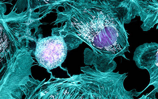 Report: Human Cell Atlas study could help understand transmission of the virus