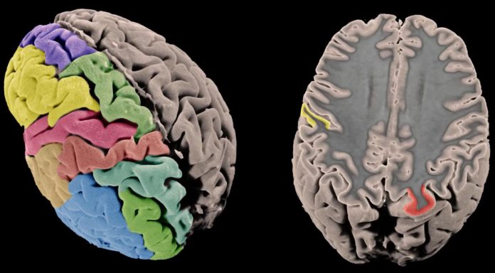Whole genome sequencing reveals genetic structural secrets of schizophrenia (Study)