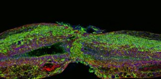 Researchers regenerate neurons in mice with spinal cord injury and optic nerve damage