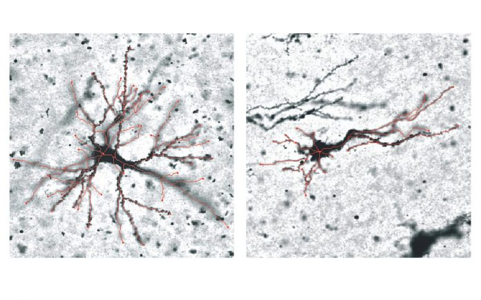 How does our brain fold? Study reveals new genetic insights