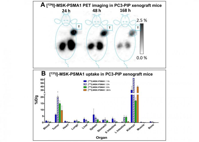 New theranostic agents show efficacy in prostate cancer treatment in preclinical studies
