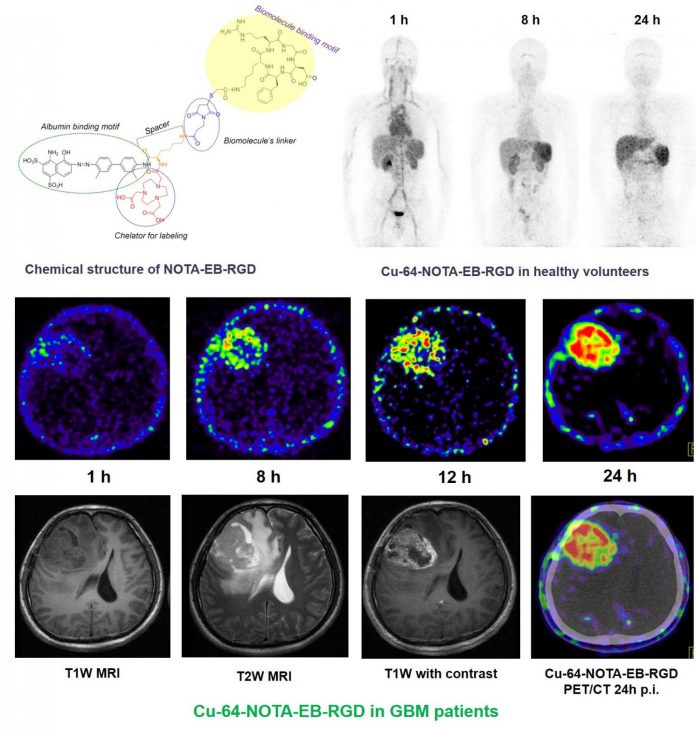 New PET radiotracer proven safe and effective in imaging malignant brain tumors