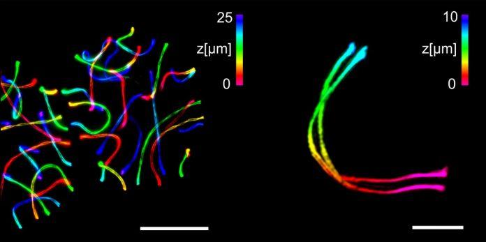 High-end microscopy refined   EurekAlert! Science News
