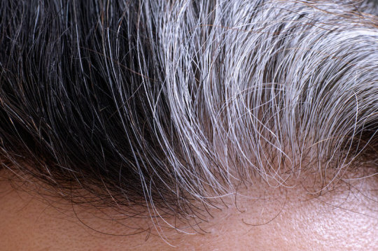 Research: Stress can turn hair gray -- and it's reversible
