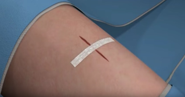 Suturing reported to be better than stapling for skin closure